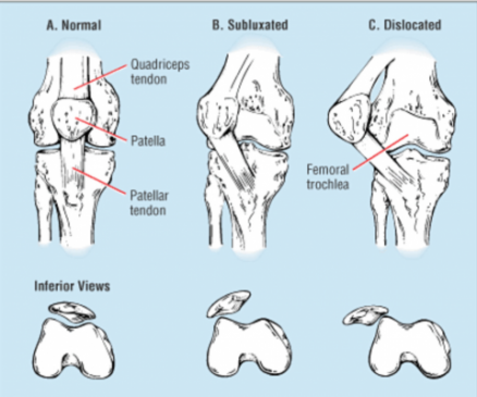 Diagnosis of Dislocation and Subluxation