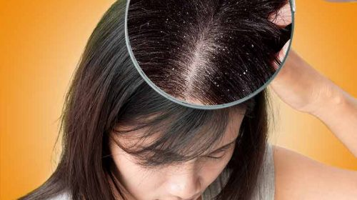 shampoo hair loss