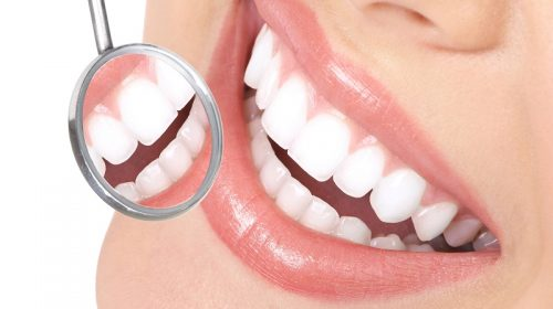 Guide to Perfect Teeth Whitening
