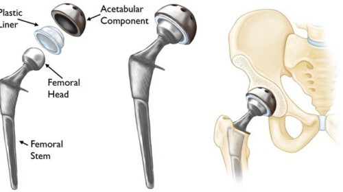 Total Hip Replacement Cost in India