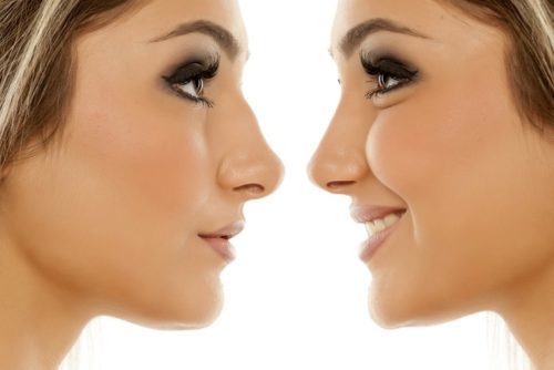 How Much Do Nose Fillers cost And Are They Worth It