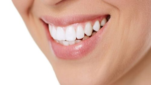 Simple Remedies to Get Rid of Yellow Teeth